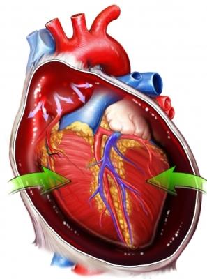 Cardiac Monitoring Goes Wireless