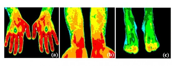 Normal thermal pattern 550x212 Top 10 Uses of Thermal Imaging