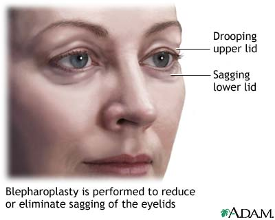 Blepharoplasty Top 10 Cosmetic Surgeries