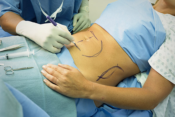tummy tuck Top 10 Cosmetic Surgeries