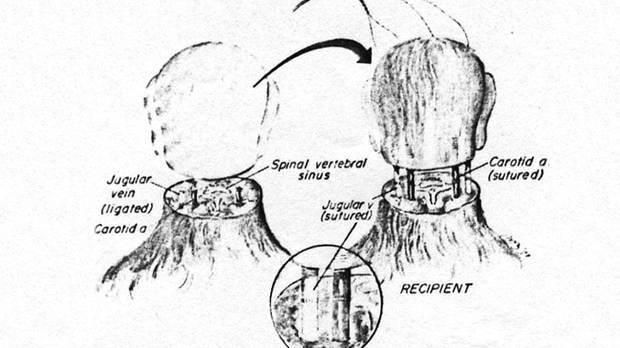 brnsktch987fasdf Head Transplant Now Possible Says NeuroScientist
