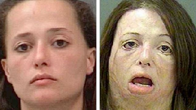 10 Scariest Before and After Pictures Showing How Drugs ...