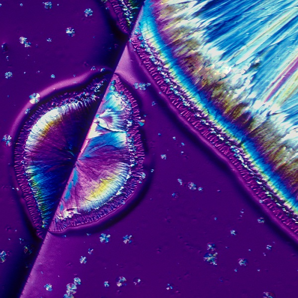 The  microscopic image of Belgian Tripel beer.